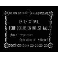 Entérostomie pour occlusion intestinale (anus temporaire, opération de Nélaton).
